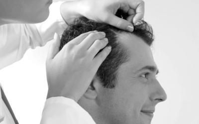 Problema capilar - Alopecia